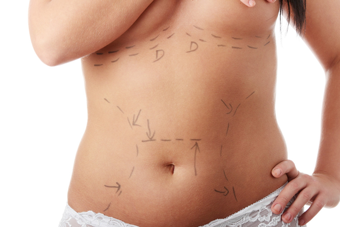 bryster med eget fedt medfølgende ordning
